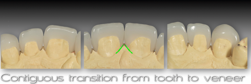 contiguous transition from tooth to veneer
