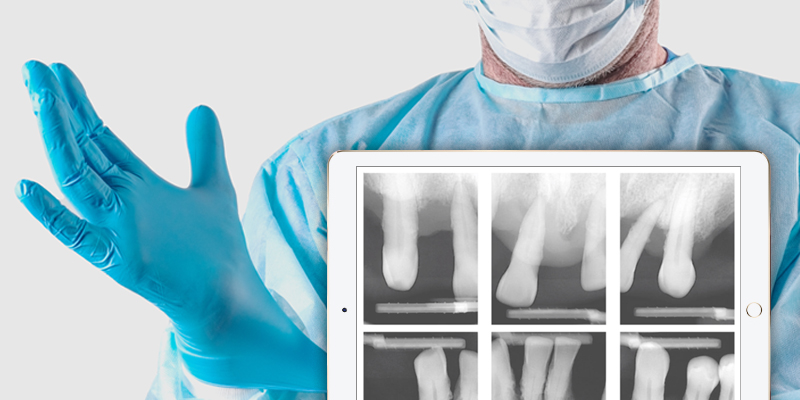 dentist working on a patient, inset of an ipad with teeth xrays