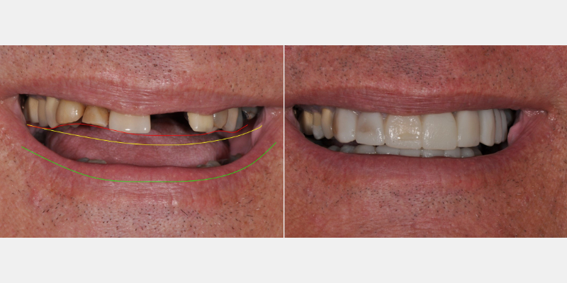 Patient pre-treatment and Trial Smile images
