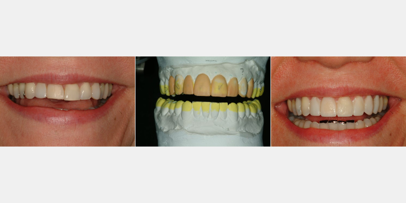 Patient pre-treatment, diagnostic wax-up and Trial Smile images.