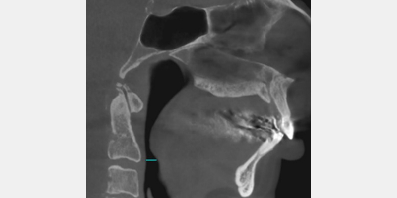 X-ray showing reduced maxillary and mandibular growth resulted in a compromised oropharyngeal airway space.