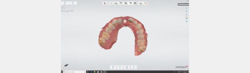 Intraoral scan for digital impression.