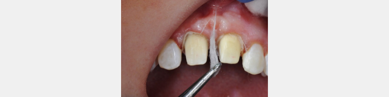 Cotton wisp from cotton roll dipped in Hemodent (Premier) for tissue retraction.
