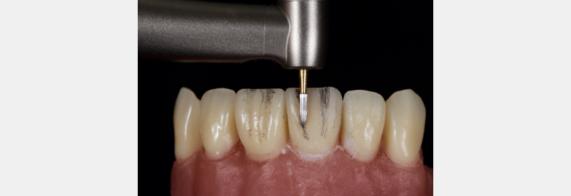 Repeating anterior composite process using medium grit discs.