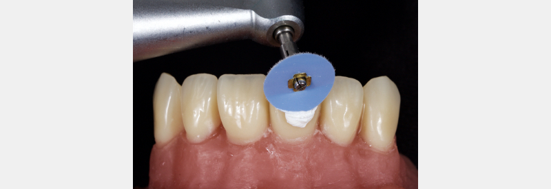 Achieving final anterior composite polish with 1-micron aluminum oxide, water-based polishing paste on a felt wheel, running vertically from gingival to incisal.