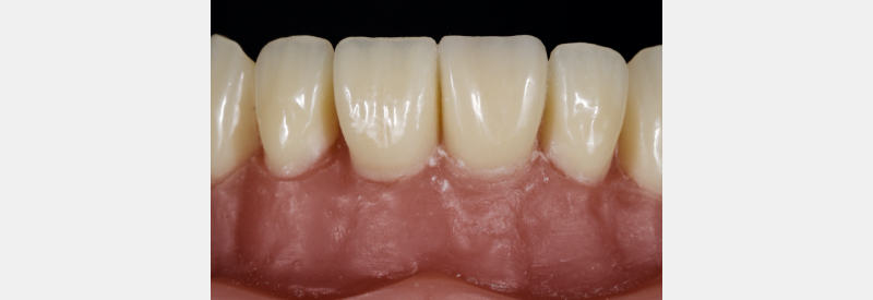 Final polished anterior tooth surface with a composite result that looks like natural enamel.