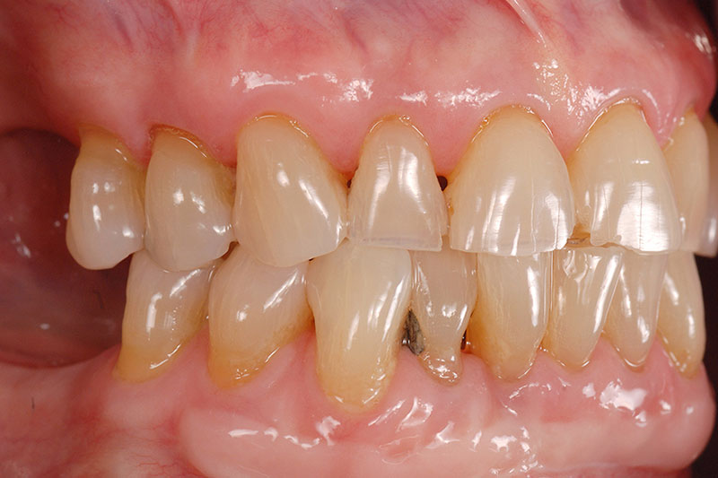 Close-up of patient who presented with a treatment plan for a full mouth reconstruction that includes crowns and veneers, utilizing implants in all four posterior sextants.