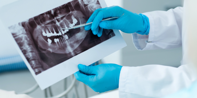 close up of a dentist holding a xray, pointing out a section of the mouth