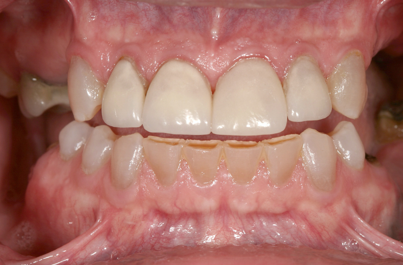 full front teeth with bottoms showing a dark ridge