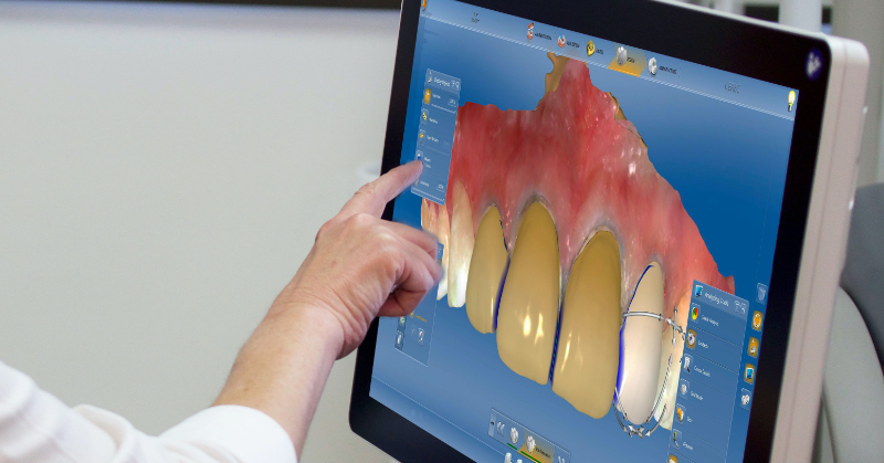 A computer screen with a digital rendering of front teeth, a doctor selects a menu option with touch
