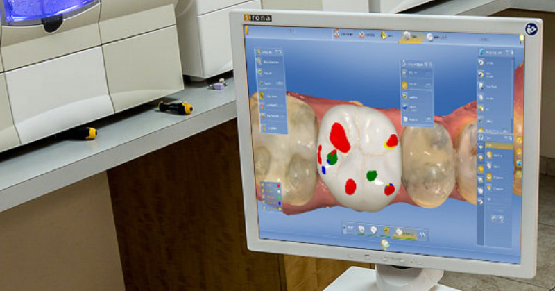 A computer screen with a digital rendering of the tops of molars, where red and green areas of one tooth are indicated.