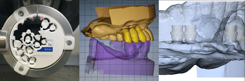 Three images showing advancements in CAD/CAM and digital dentistry.