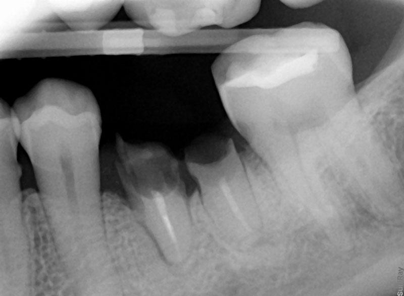 Periapical radiograph of the patient's mandibular first molar.