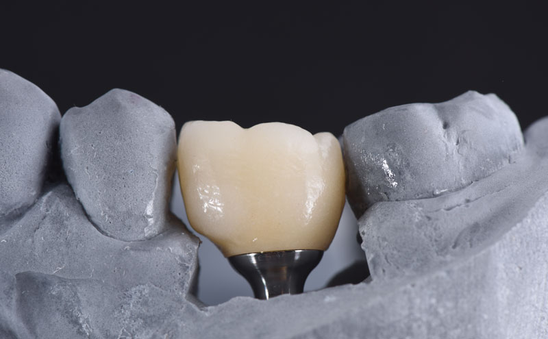 Frontal view of the final zirconia crown bonded to a Variobase.