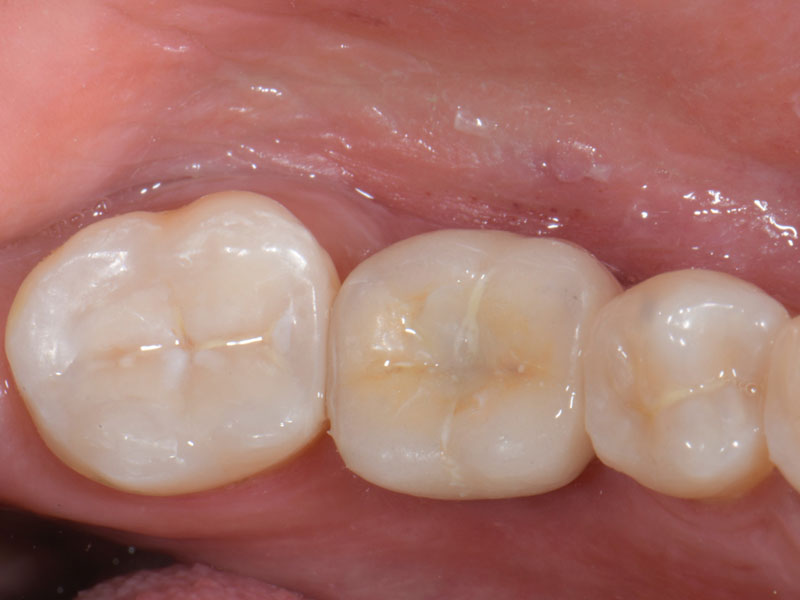 Occlusal view of the final restoration with the access hole sealed with composite. Note that the interproximal contact was optimized utilizing an inlay on the second molar.