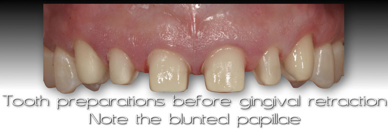 Tooth preparations before gingival retraction. Note the blunted papillae.