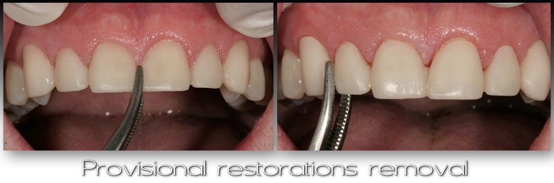 Provisional restorations removal