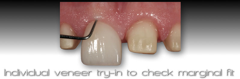 Individual veneer try-in to check marginal fit.