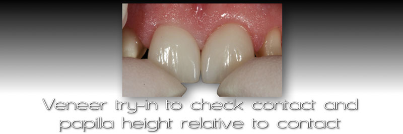 Veneer try-in to check contact and papilla height relative to contact.