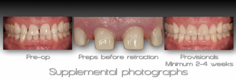 Three side-by-side of mouth front: Pre-op, Preps before retraction, and Provisionals. Minimum 2-4 weeks. Supplemental Photographs.