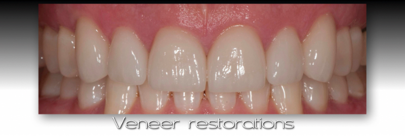 Front of mouth: Veneer restorations