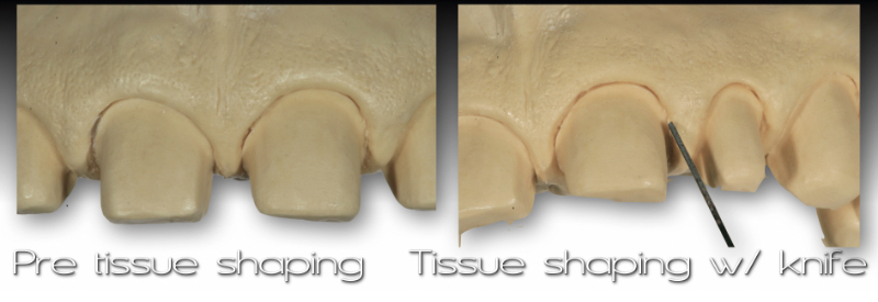 Side by side views of cast: pre-tissue shaping and tissue shaping with knife