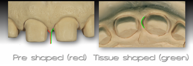 Front and underside views of cast: pre-shaped and tissue-shaped