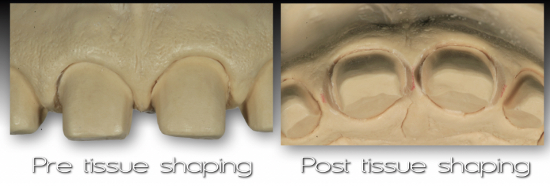 Front and underside views of cast: pre-tissue shaping and post tissue shaping