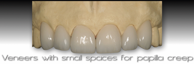 Front views of cast and veneers with small spaces for papilla creep