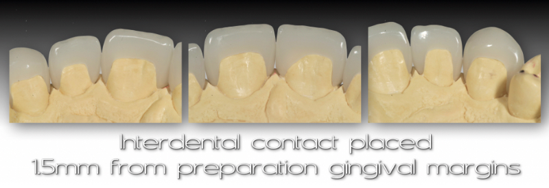 Backside views of cast and veneers: Interdental contact placed 15mm from preparation gingival margins.