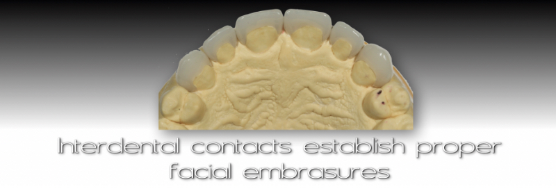 Underside of cast and veneers: Interdental contacts establish proper facial embrasures.