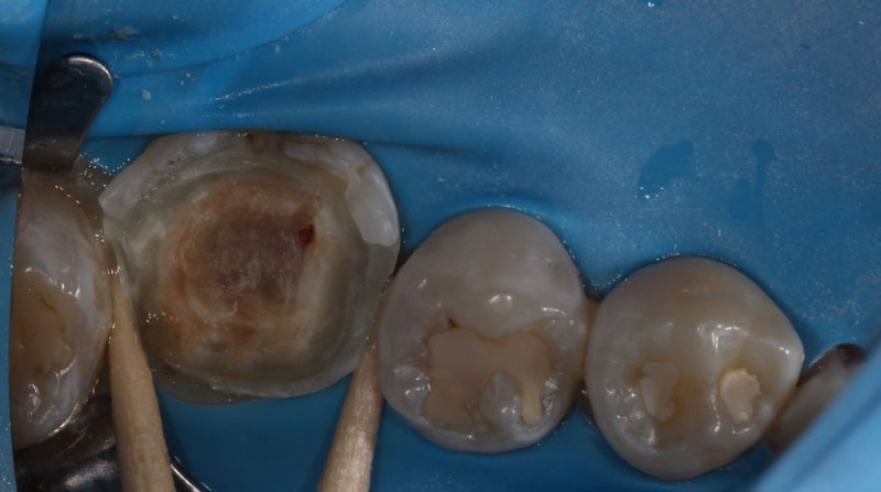 Large carious lesion in close proximity to the pulp on a vital tooth #19.