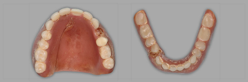 Conventional dentures that should be replaced rather than repaired.