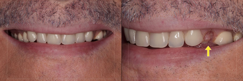 This patient presented with an esthetic emergency. The denture tooth separated from the denture base in the upper left first premolar position.
