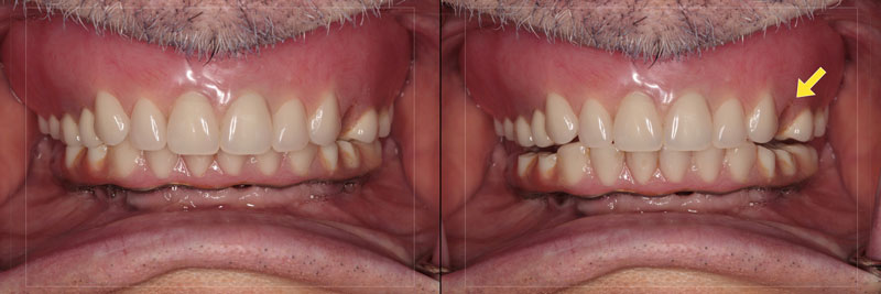 Retracted views with teeth together (left) and slightly separated (right). The debonded premolar is visible but is not the only problem.