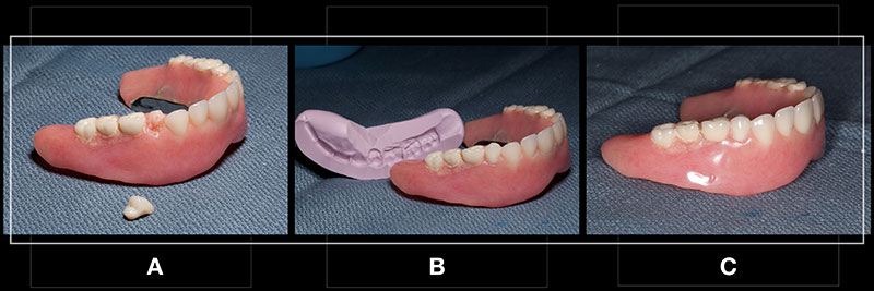 A new denture tooth has been selected for the repair. The tooth is similar in shade and mould to remaining denture teeth.
