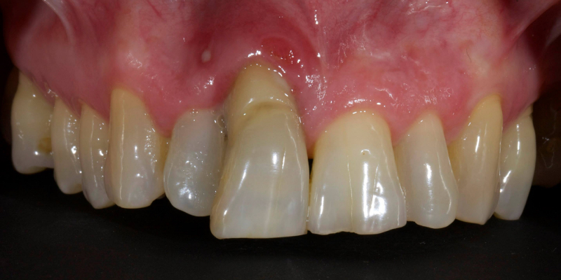 Elizabeth's upper front teeth with the left front tooth showing a ridge near the gums.