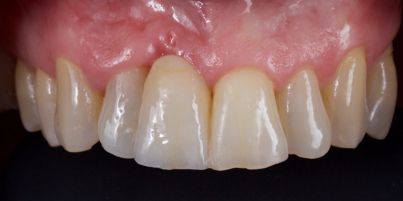 Elizabeth's upper front teeth with the left front tooth smooth.