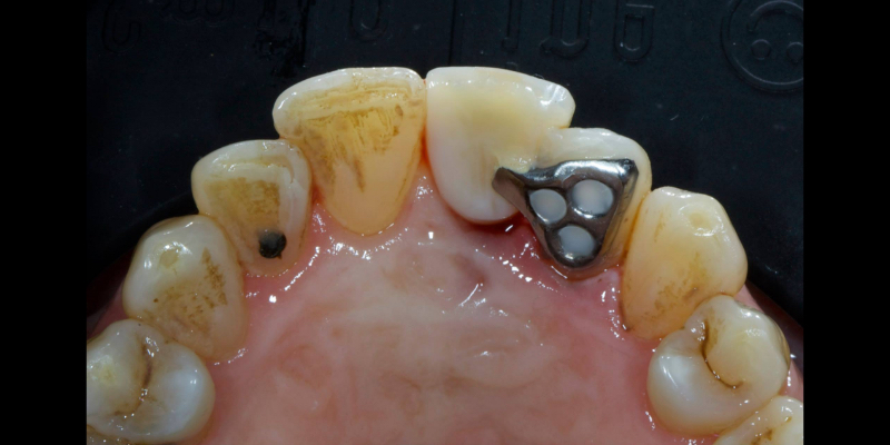 back view of upper teeth with a metal triangular piece bonded to the back of the lateral incisor.