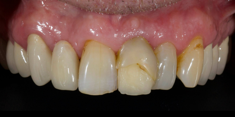 John's front view of top teeth with a large crack across the right central incisor.