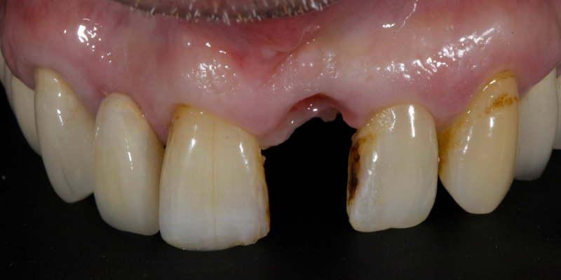John's front view of top teeth with a missing right central incisor.