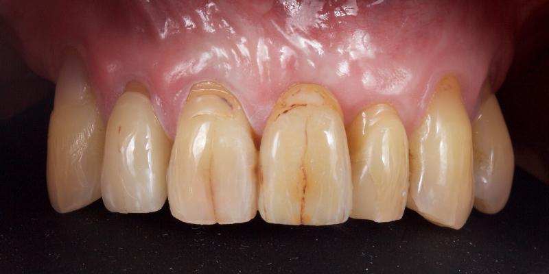 Authur's top teeth with all the teeth.