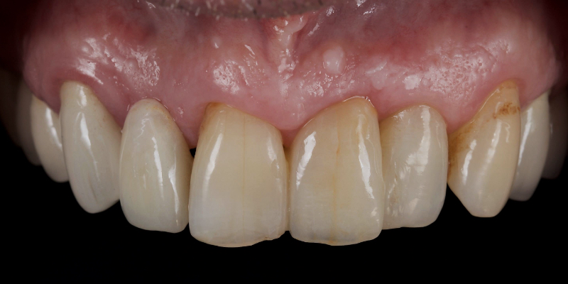 John's front view of top teeth with the right cental incisor replaired.