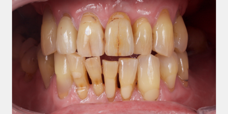 Authur's full set of upper and lower teeth with lips pulled back.