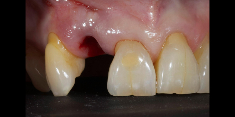 Jenny's top teeth with a missing left lateral incisor.