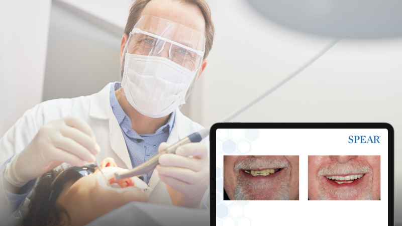 A dentist working on a child's mouth, in the foreground is a computer screen with the new study club module.