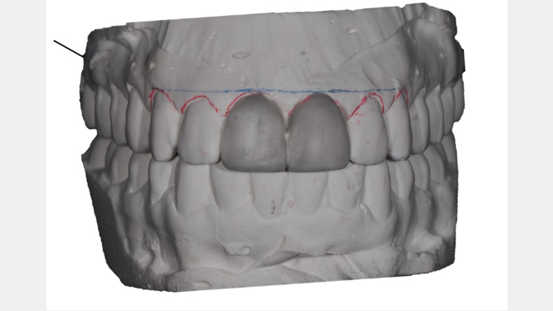 Facial view of diagnostic wax-up – added tooth length and gingival symmetry.