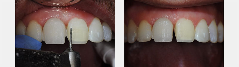 Pre-recontouring of teeth prior to mock-up placement.