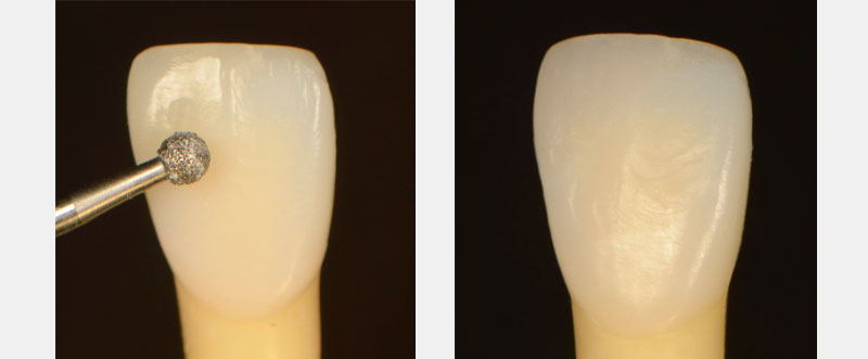 On the left, the tooth with is etched with a round instrument. On the right, the tooth after the area is fixed.