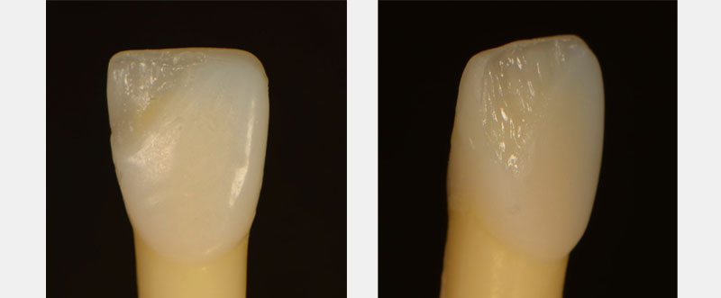 The facial portion was cut back. Figure 4B shows dentin composite layered over the natural tooth with enough space for the enamel layers.
